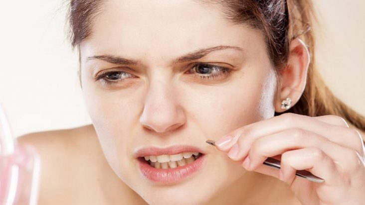 removal unwanted facial hair