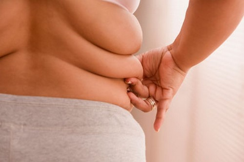 Is Obesity physical deformities