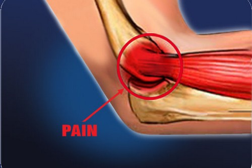 10 Injuries Almost Every Sportsperson Suffer