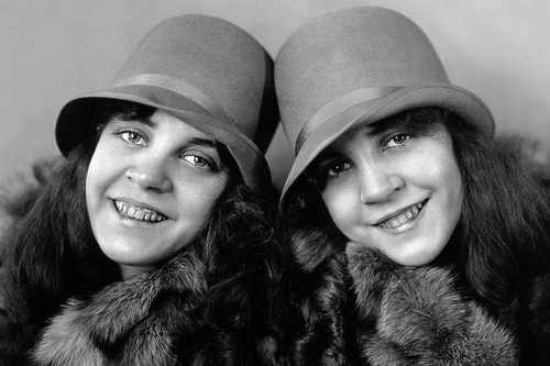 Daisy and Violet Hilton Siamese Twins