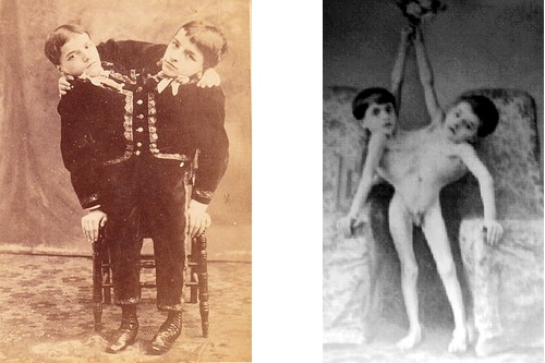 Giacomo and Giovanni Tocci Siamese Twins