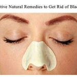 10 Effective Natural Remedies to Get Rid of Blackheads