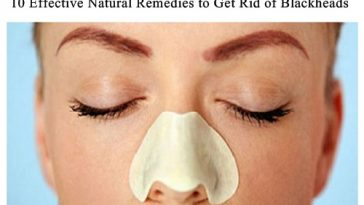 natural remedies to get rid of blackheads