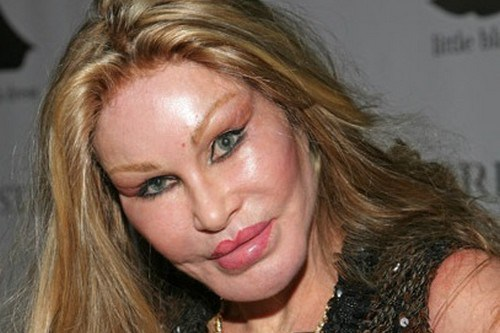 Jocelyn Wildenstein Plastic Surgery Fail