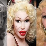 10 Times Plastic Surgery Went Horribly Wrong for Celebrities