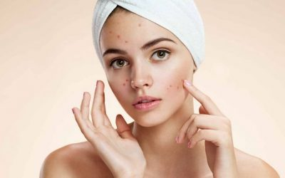 10 Natural Ways to Get Rid of Acne