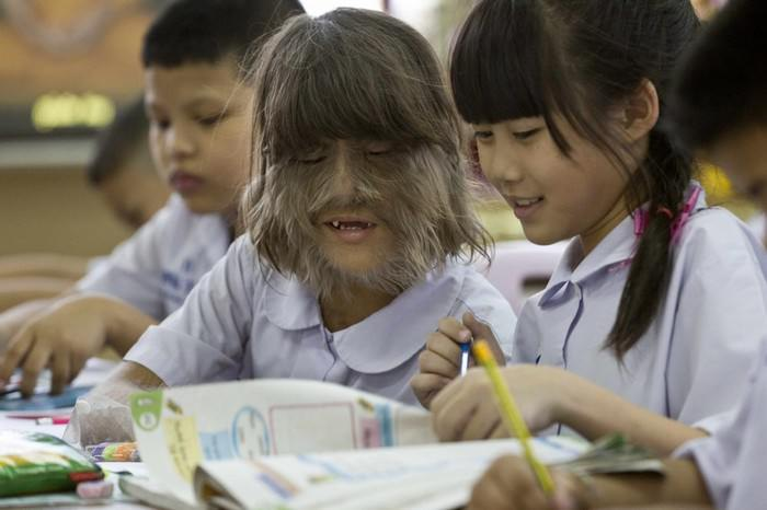 Supatra 'Natty' Sasuphan - World's hairiest girl