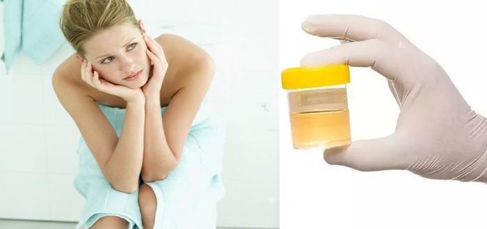 Urine Taste Test