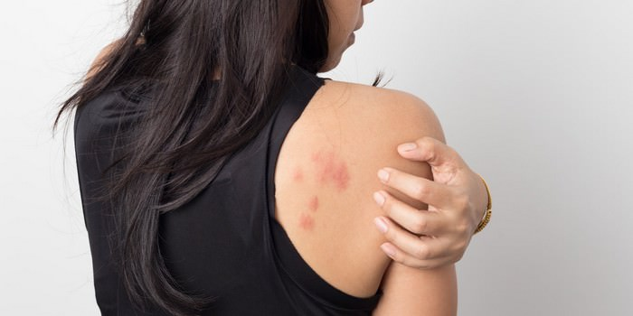 most common skin problems in India